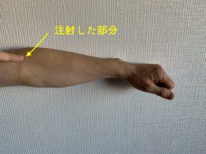 筋膜リリース注射