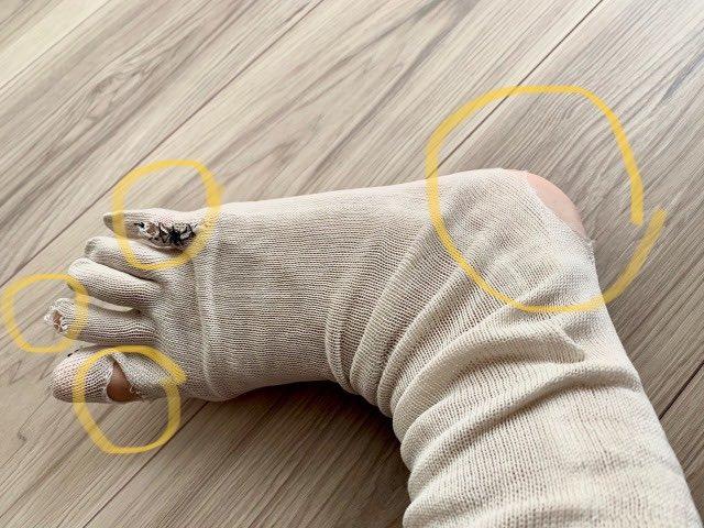 冷えとり靴下破れ